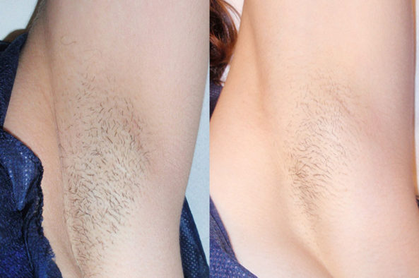 hair-removal_before-after2_large