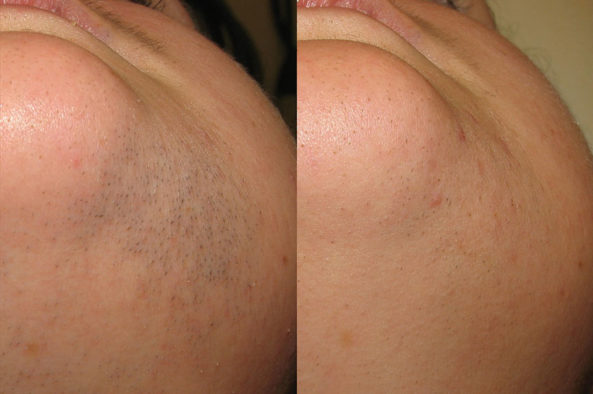 hair-removal_before-after4_large
